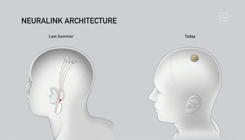 Neuralink technology
